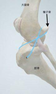前十字靭帯手術1